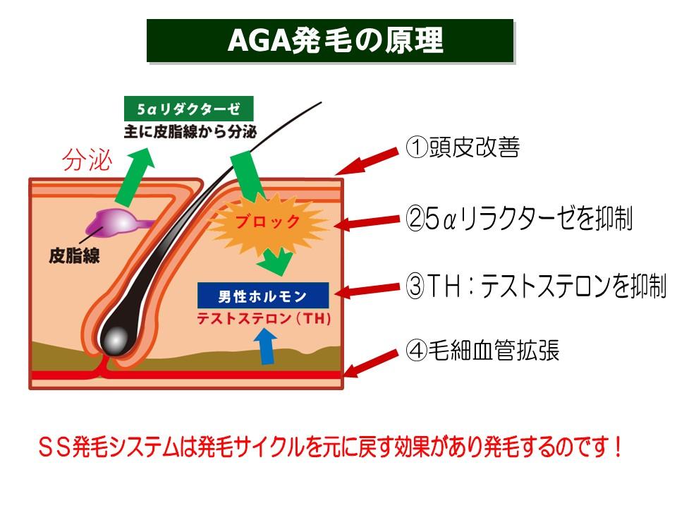 鹿児島AGA治療