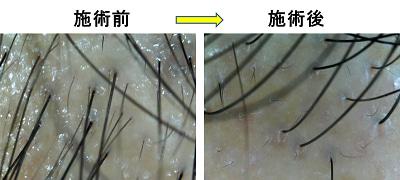 頭皮のマイクロスコープ画像
