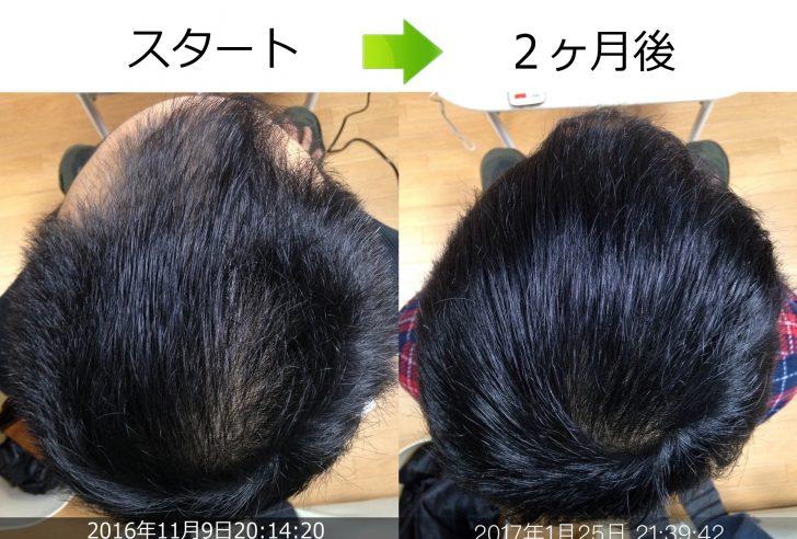 頭頂部の発毛実績