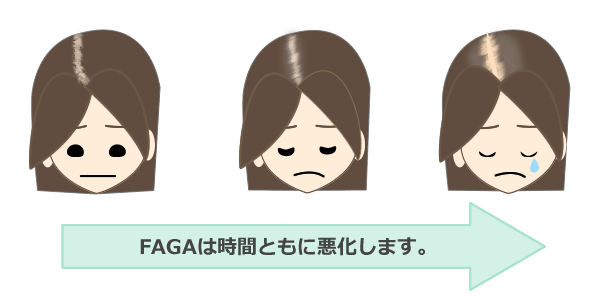 FAGA(男女型脱毛症)の対策
