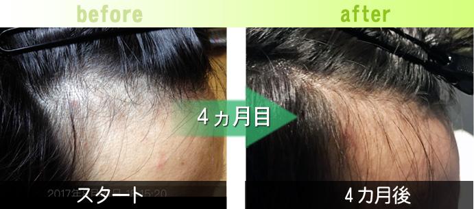 右M字の発毛育毛実績