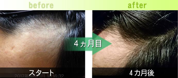 左M字の発毛育毛実績