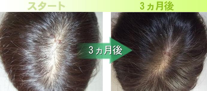 30代女性鹿児島びまん性脱毛症発毛実績写真