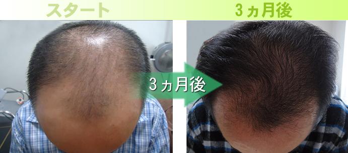 30代男性AGA治療(生え際)発毛実績
