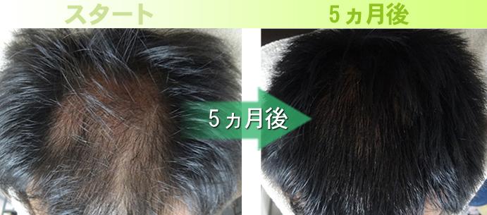 40代男性のAGA治療発毛実績写真