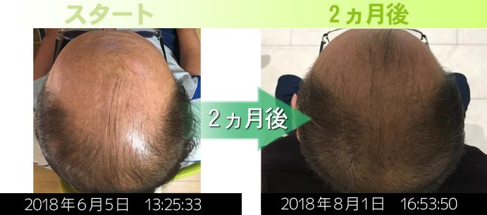 鹿児島AGA治療発毛改善例写真