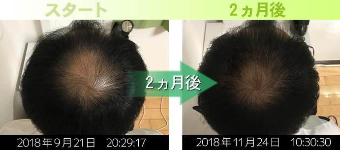 40代男性鹿児島AGA治療発毛実績