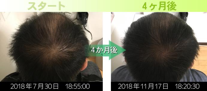 40代男性AGA治療の発毛実績写真