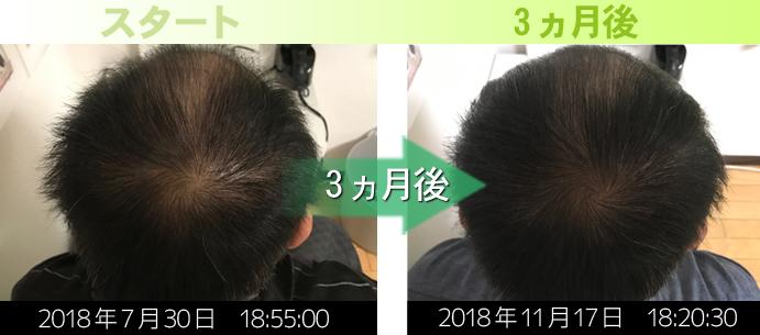 男性の発毛実績