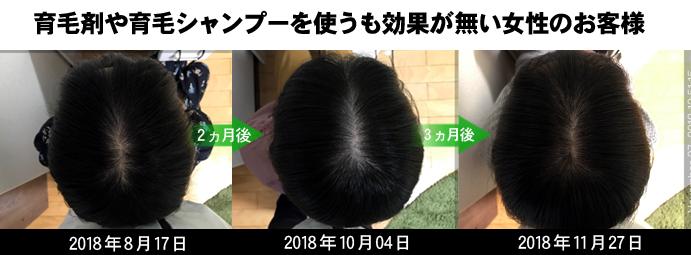 鹿児島女性の薄毛治療実績