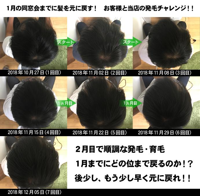 20代男性頭頂部のAGA治療発毛経過