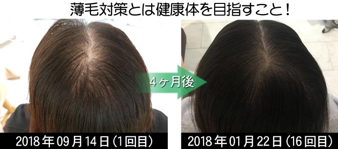 びまん性脱毛症治療