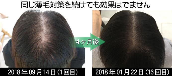 20代女性の薄毛治療
