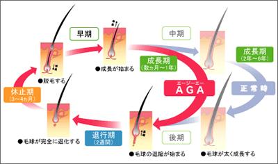AGAの仕組み