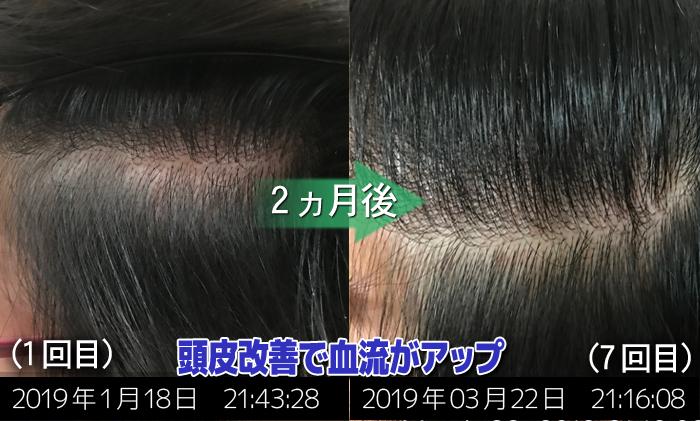 30代女性頭皮改善