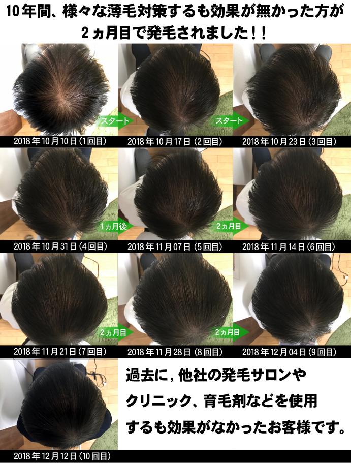 以前の薄毛改善の記事