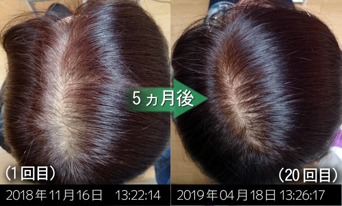 女性の薄毛改善実績
