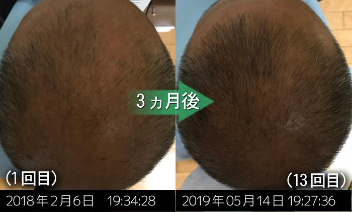 頭頂部のAGA治療