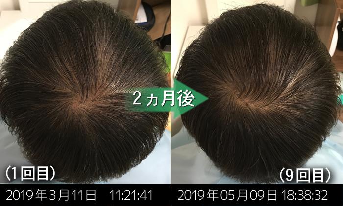 男性の薄毛改善実績