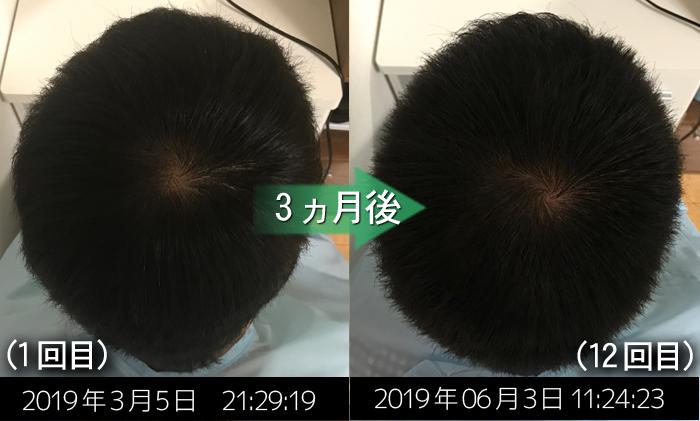 薄毛の予防症例