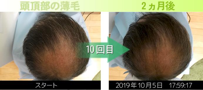 頭頂部の薄毛写真