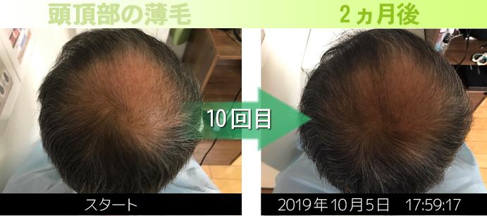 つむじの薄毛改善写真