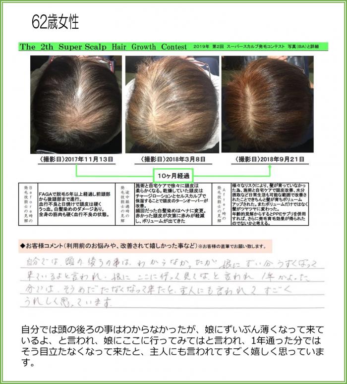 女性の発毛症例写真